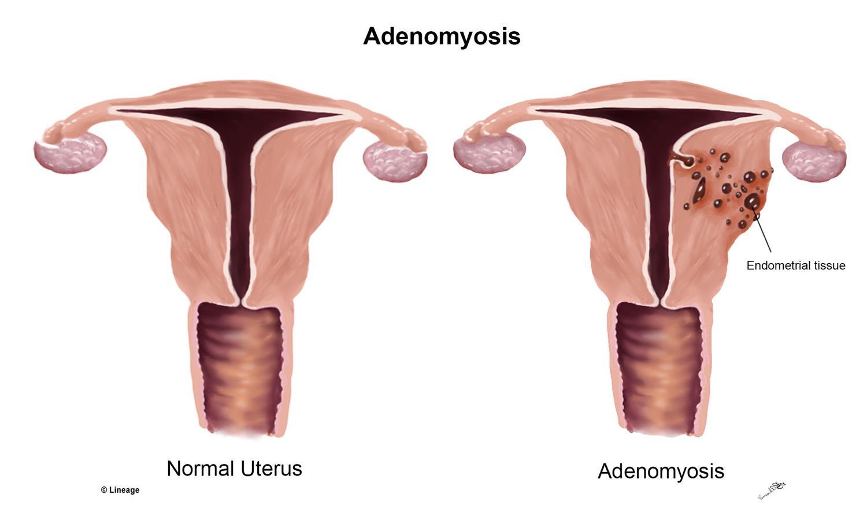 Adenomiyozis